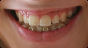 Parodontologie in der Zahnarztpraxis Dres von Landenberg
