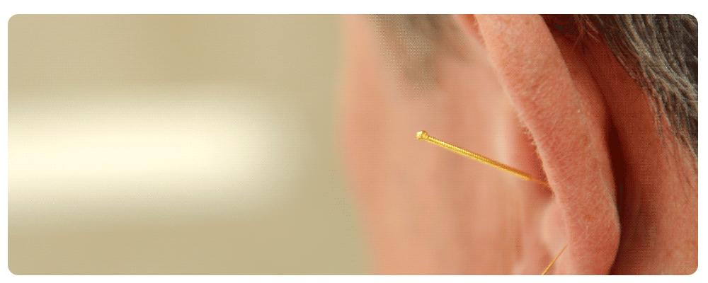 Zahnarztpraxis-von-Landenberg-Akupunktur